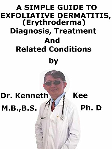 A  Simple  Guide  To  Exfoliative Dermatitis, (Erythroderma)  Diagnosis, Treatment  And  Related Conditions (English Edition)
