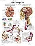 3B Scientific Lehrtafel - Der Schlaganfall