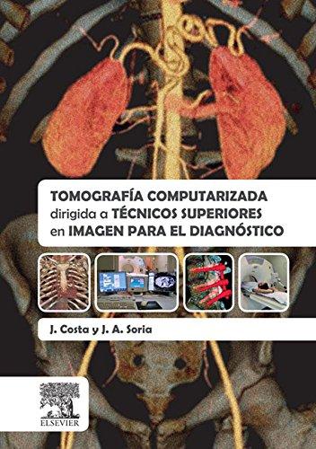 Tomografía computarizada dirigida a técnicos superiores en imagen para el diagnóstico por Joaquín Costa Subias