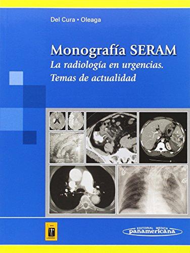 Radiologia Urgencias: Temas De Actualidad por Seram epub