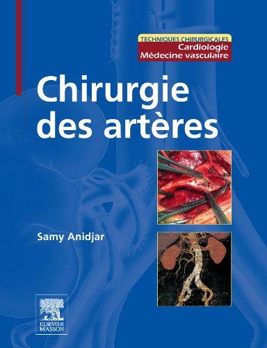 Chirurgie des artères