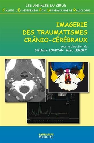 Imagerie des traumatismes crânio-cérébraux par Stéphane Louryan