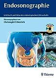 Endosonographie: Leitfaden und Atlas - Christoph Frank Dietrich