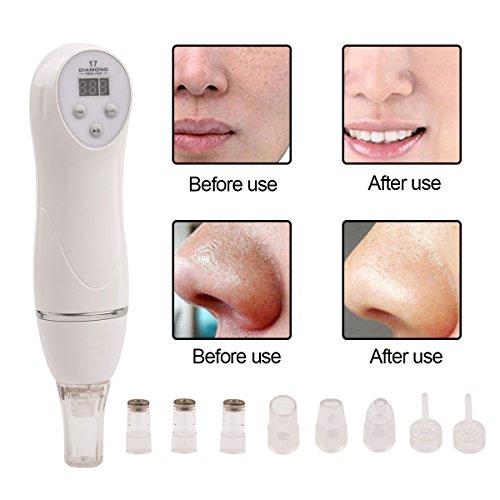 ckeyinr-6-tips-dermabrasion-machine-exfoliants-pour-le-visage-soins-de-la-peau-du-visage-masseur-app