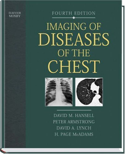 Imaging of Diseases of the Chest by David M. Hansell (2004-12-09)