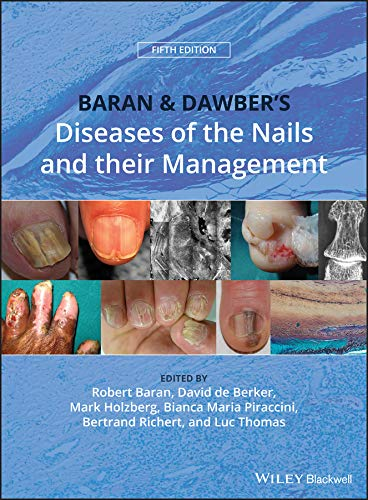 Baran and Dawber's Diseases of the Nails and their Management (English Edition)
