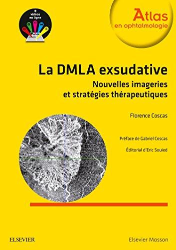 Stratégies thérapeutiques dans la DMLA exsudative