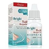 Best Toenail Fungus Treatments - New 2017 New Nail Fungus Treatment Essence 10ml Review