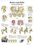 3B Scientific Lehrtafel - Becken und Hüfte - Anatomie und Pathologie