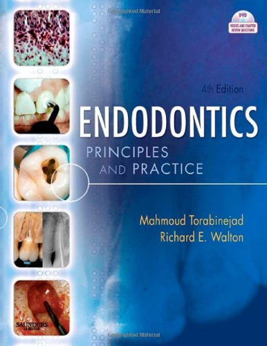 Endodontics: Principles and Practice, 4e
