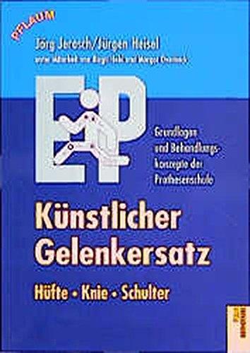 Künstlicher Gelenkersatz. Hüfte, Knie, Schulter: Grundlagen und Behandlungskonzepte der Prothesenschule (Pflaum Physiotherapie)