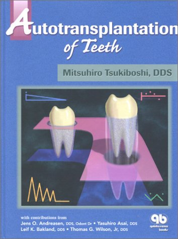 Autotransplantation of Teeth por Mitsuhiro Tsukiboshi