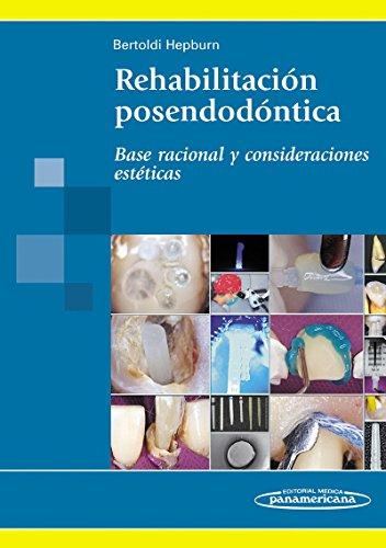 Rehabilitación Posendodóntica: Base racional y consideraciones estéticas por Bertoldi