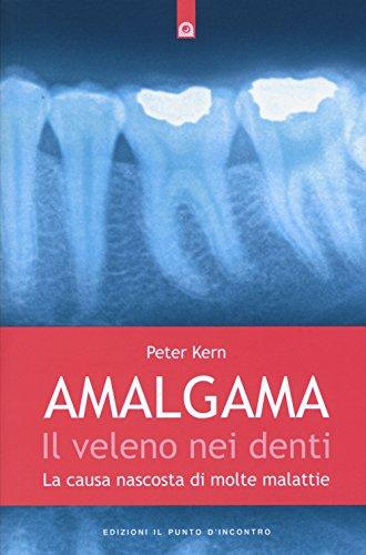 Amalgama. Il veleno nei denti. La causa nascosta di molte malattie