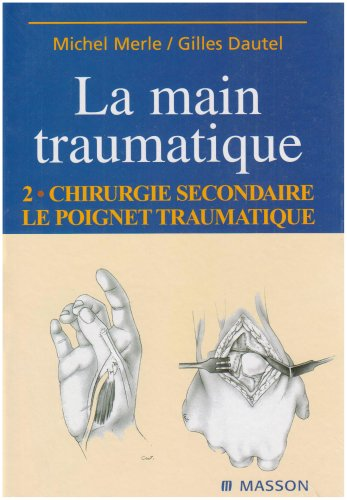 Descargar Libro Main traumatique. Chirurgie secondaire, le poignet traumatique, tome 2 de Merle