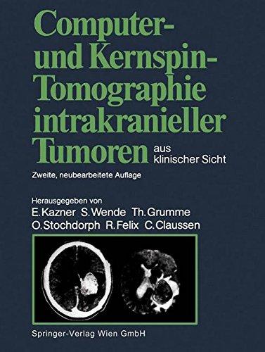 Computer- und Kernspin-Tomographie intrakranieller Tumoren aus klinischer Sicht
