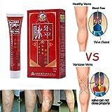 KOBWA Krampfadern Creme für die Beine, Relief das Aussehen der Phlebitis Angiitis Entzündung Blutgefäß, 30g