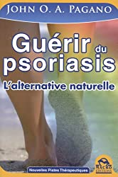 Guérir du psoriasis - L'alternative naturelle