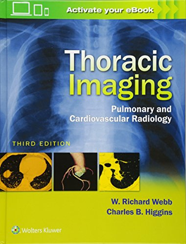 Thoracic Imaging : Pulmonary and Cardiovascular Radiology por Collectif