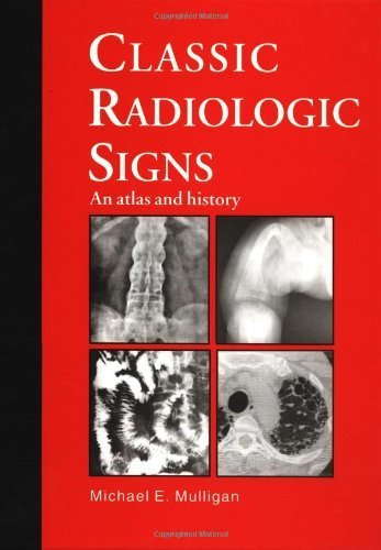 Classic Radiologic Signs: An Atlas and History by M.E. Mulligan (1996-11-15)