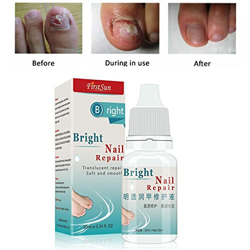 Nail Fungus Treatment Cream Onychomycosis Paronychia Anti Fungal Nail Infection Toe Nail Treatment