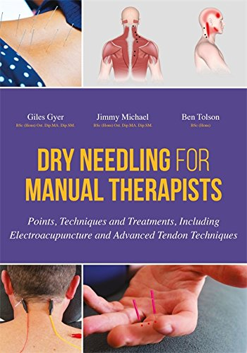 dry-needling-for-manual-therapists-points-techniques-and-treatments-including-electroacupuncture-and