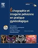 Image de Échographie et imagerie pelvienne en pratique gynécologique