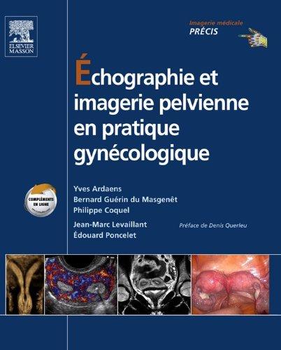 chographie et imagerie pelvienne en pratique gyncologique