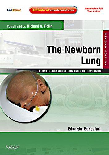 The Newborn Lung: Neonatology Questions And Controversies E-book (neonatology: Questions & Controversies) por Eduardo Bancalari epub