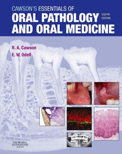 Téléchargement gratuit d\'ebooks électroniques Cawson's Essentials of Oral Pathology and Oral Medicine PDF