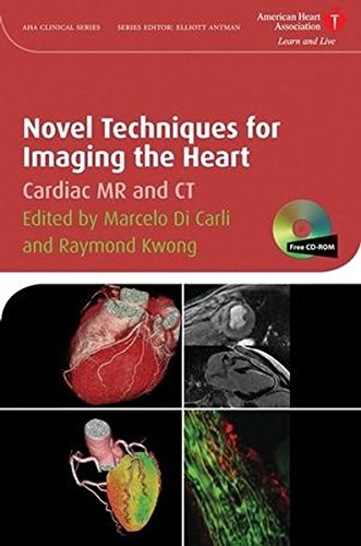 novel-techniques-for-imaging-the-heart-american-heart-association-clinical-series
