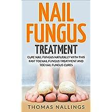 Nail Fungus Treatment: Cure Nail Fungus Naturally With This Fast Toenail Fungus Treatment and Toenail Fungus Cures (nail fungus cures, nail fungus treatment, nail fungus) (English Edition)