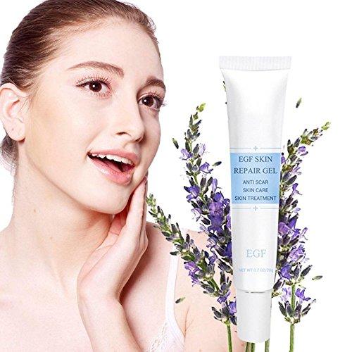 etrong, zum Entfernen von Akne-Narben, schneidet Skin Repair Creme, zur Dehnungsstreifen, Akne-Behandlung (5, 20g)