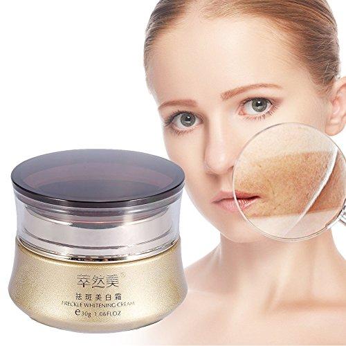 Sommersprossen Creme, Dunkle Flecken Repair Removal Cream Gesichtshaut Whitening