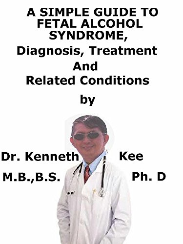 A  Simple  Guide  To  Fetal Alcohol Syndrome,  Diagnosis, Treatment  And  Related Conditions (English Edition)