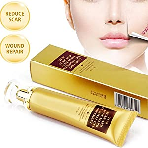FOXTSPORT Crema Cicatriz,Cicatrices Tratamiento,Anti Acné Crema, Ideal Para Todo Tipo Cicatrices Nuevas y/oViejas, Acne Scar Removal Cream 30g