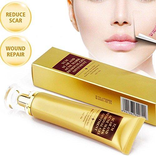 Akne Narbe entfernen creme, Skin Repair Cream Narbe Creme Gel Narben Behandlung für Gesicht und...