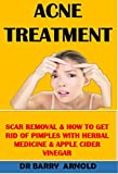 ACNE TREATMENT: SCAR REMOVAL & HOW TO GET RID OF PIMPLES WITH HERBAL