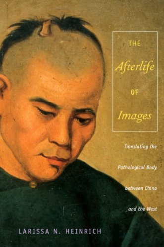 The Afterlife of Images: Translating the Pathological Body between China and the West (Body, Commodity, Text) (English Edition)