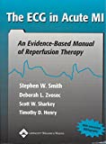 Image de The ECG in Acute MI: An Evidence-Based Manual of Reperfusion Therapy (English Edition)