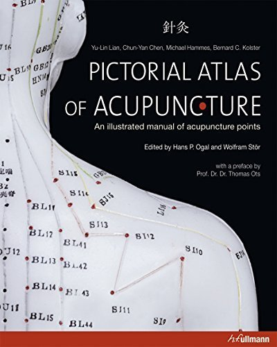 Atlas of Acupuncture by Wolfram Stor (2013-04-28)