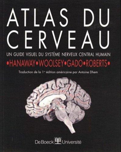 Atlas du cerveau par Hanaway