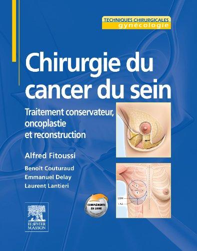 Chirurgie du cancer du sein: Traitement conservateur, oncoplastie et reconstruction