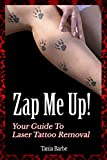 Zap Me Up! - Your Guide to Laser Tattoo Removal (English Edition)