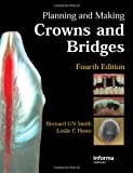 Planning And Making Crowns And Bridges (Ex)