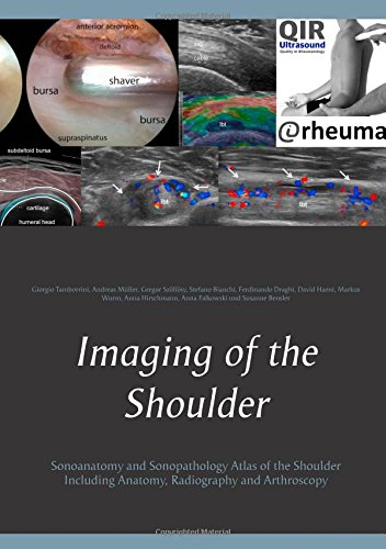 Imaging of the Shoulder: Sonoanatomy and Sonopathology Atlas of the Shoulder Including Anatomy, Radiography and Arthroscopy (Medizin Wurm)