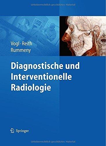 Diagnostische und interventionelle Radiologie von Thomas J. Vogl (Herausgeber), Wolfgang Reith (Herausgeber), Ernst J. Rummeny (Herausgeber) (18. Dezember 2010) Gebundene Ausgabe