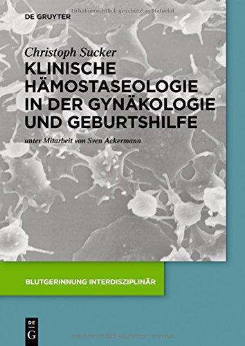 Klinische Hämostaseologie in der Gynäkologie und Geburtshilfe (Blutgerinnung interdisziplinär)
