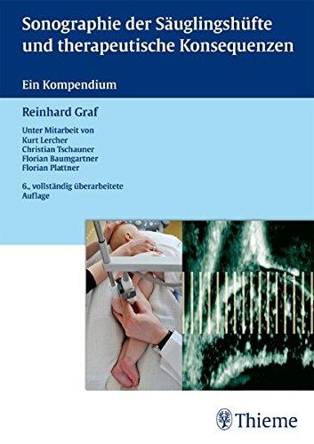 Sonographie der Säuglingshüfte und therapeutische Konsequenzen: Ein Kompendium