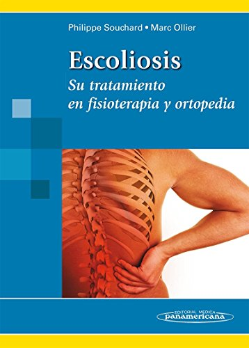 SOUCHARD:Escoliosis